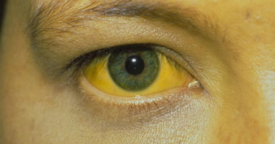 Пожелтение слизистых оболочек глаз