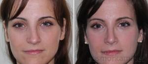 Носовая перегородка - искривление и после коррекции