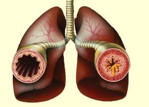 Фенспирид принимается снимает симптомы астмы
