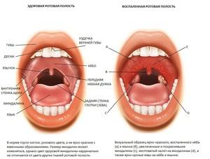 Лечение небных миндалин