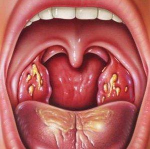 Заболевания горла
