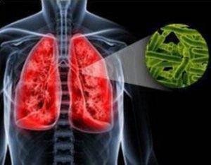 Возбудитель туберкулеза легких