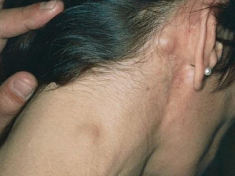 Описание внешних признаков воспаления лимфоузлов за ушами
