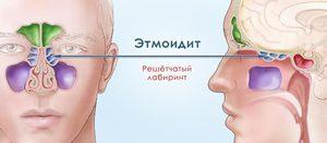 Этмоидит и его симптомы