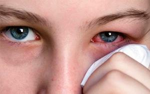 Показания к применению антибактериальных глазных капель Офлоксацин