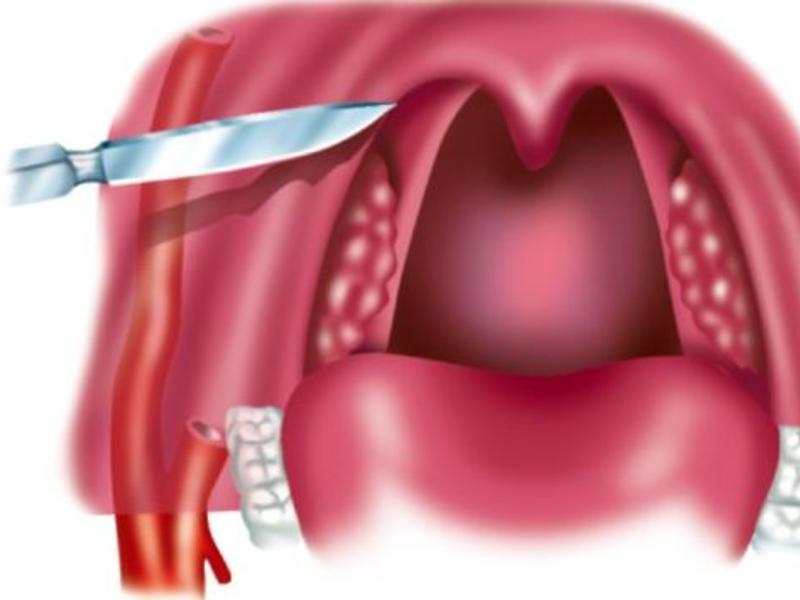 Что делают во время операции при паратонзиллярном абсцессе