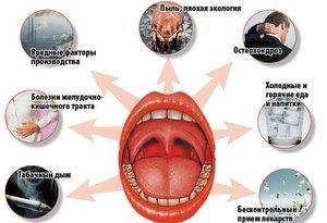 Типичные причины тонзиллита