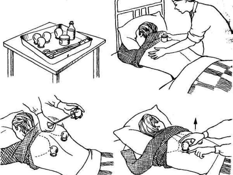 Лечение бронхита в больнице