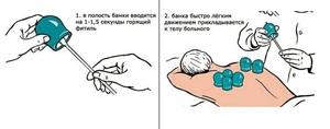 Как поставить банки при пневмонии