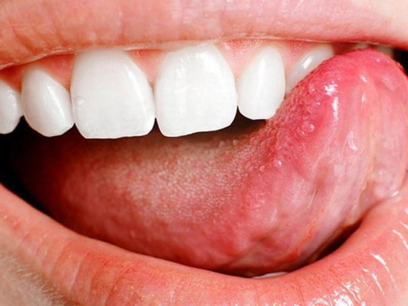 Как определить заболевание языка