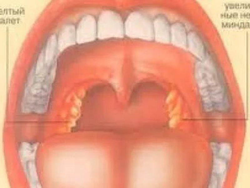 Тонзиллит в хронической форме