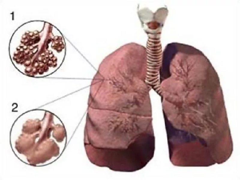 Состояние альвеол при эмфиземе легких