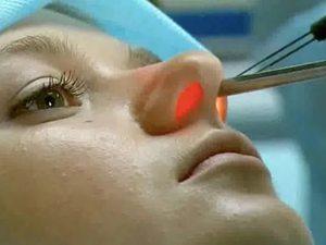 Как прижигают сосуды в носу