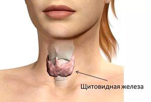 Увеличена щитовидная железа