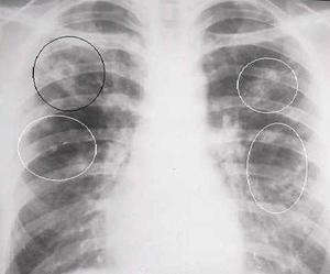 Заболевание туберкулома легких