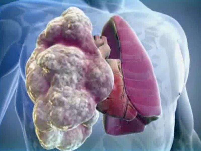 Состояние больного эмфиземой легких