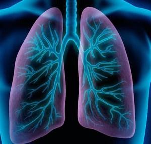 Рентгенн-диагностика пневмонии