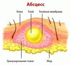 Как развивается абсцесс?