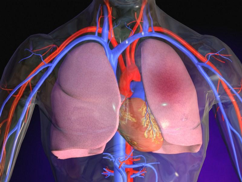 Отёк лёгких при интоксикации аммиаком