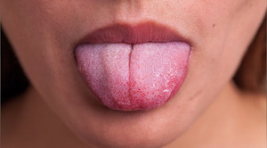 Воспаление язычной миндалины - явление редкое