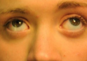 Ротаторный нистагм - непроизвольные ритмические подёргивания глазных яблок