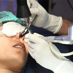Хирургическое вмешательство во время лечения